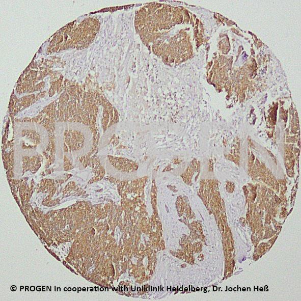 anti-Keratin K19 guinea pig polyclonal, serum