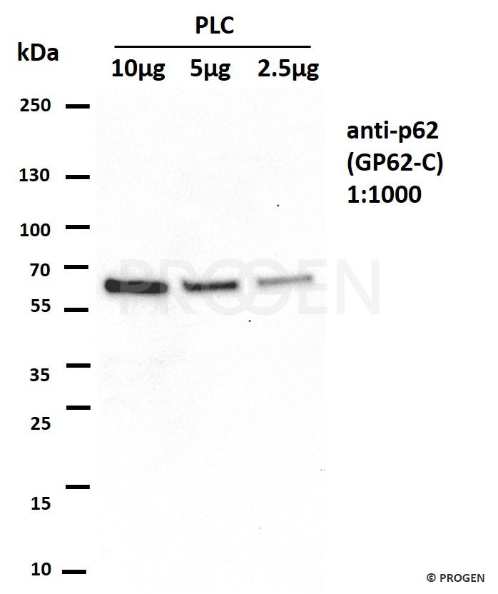 Positive western blot control: anti-p62/SQSTM1 antibody