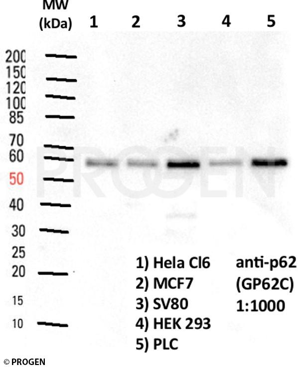 anti-p62/ SQSTM1 (C-terminus) guinea pig polyclonal, serum