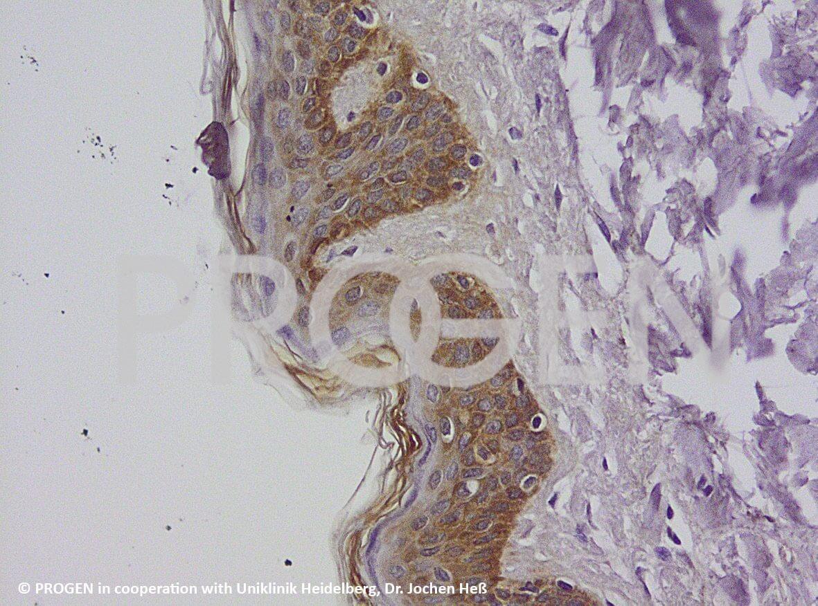 anti-Keratin Pan guinea pig polyclonal, serum