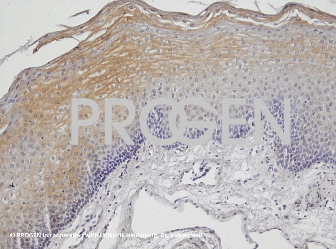 anti-Desmoplakin 1/2 mouse monoclonal, DP1 + 2-2.15, lyophilized, purified