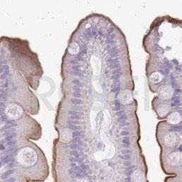 anti-Alkaline Phosphatase (intestinal) mouse monoclonal, V17.1, purified