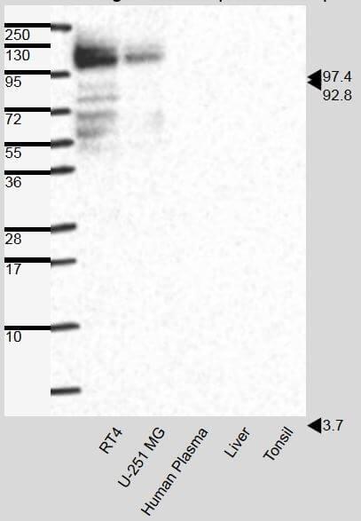 anti-Plakophilin 2 mouse monoclonal, Pkp2-518, supernatant