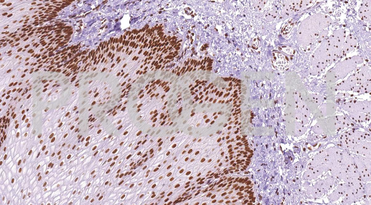 anti-MLH1 mouse monoclonal, IHC409, purified