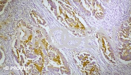anti-Carcinoembryonic Antigen mouse monoclonal, PARLAM4, ascites fluid
