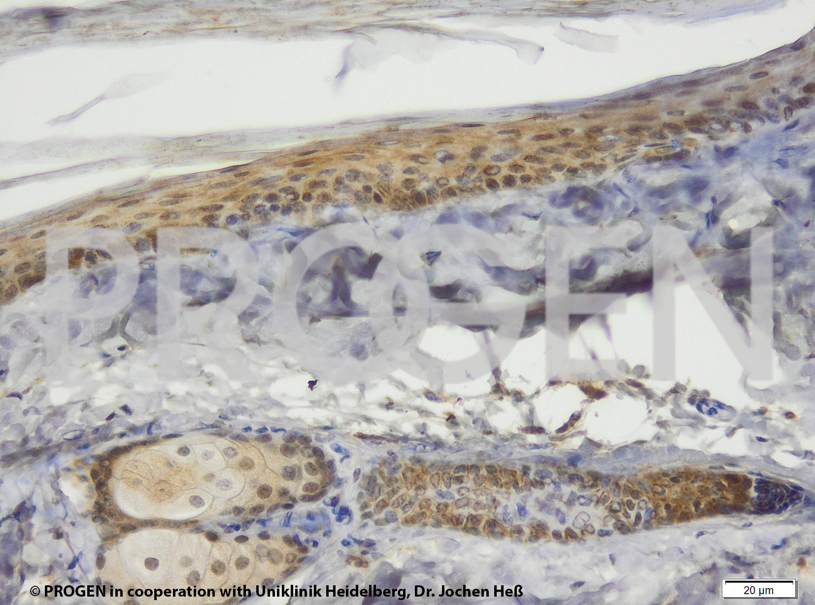 anti-Perilipin 3 mouse monoclonal, 49.19, supernatant
