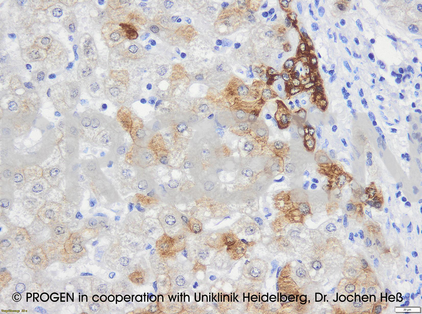 anti-Keratin K18 mouse monoclonal, Ks18.04, prediluted, purified