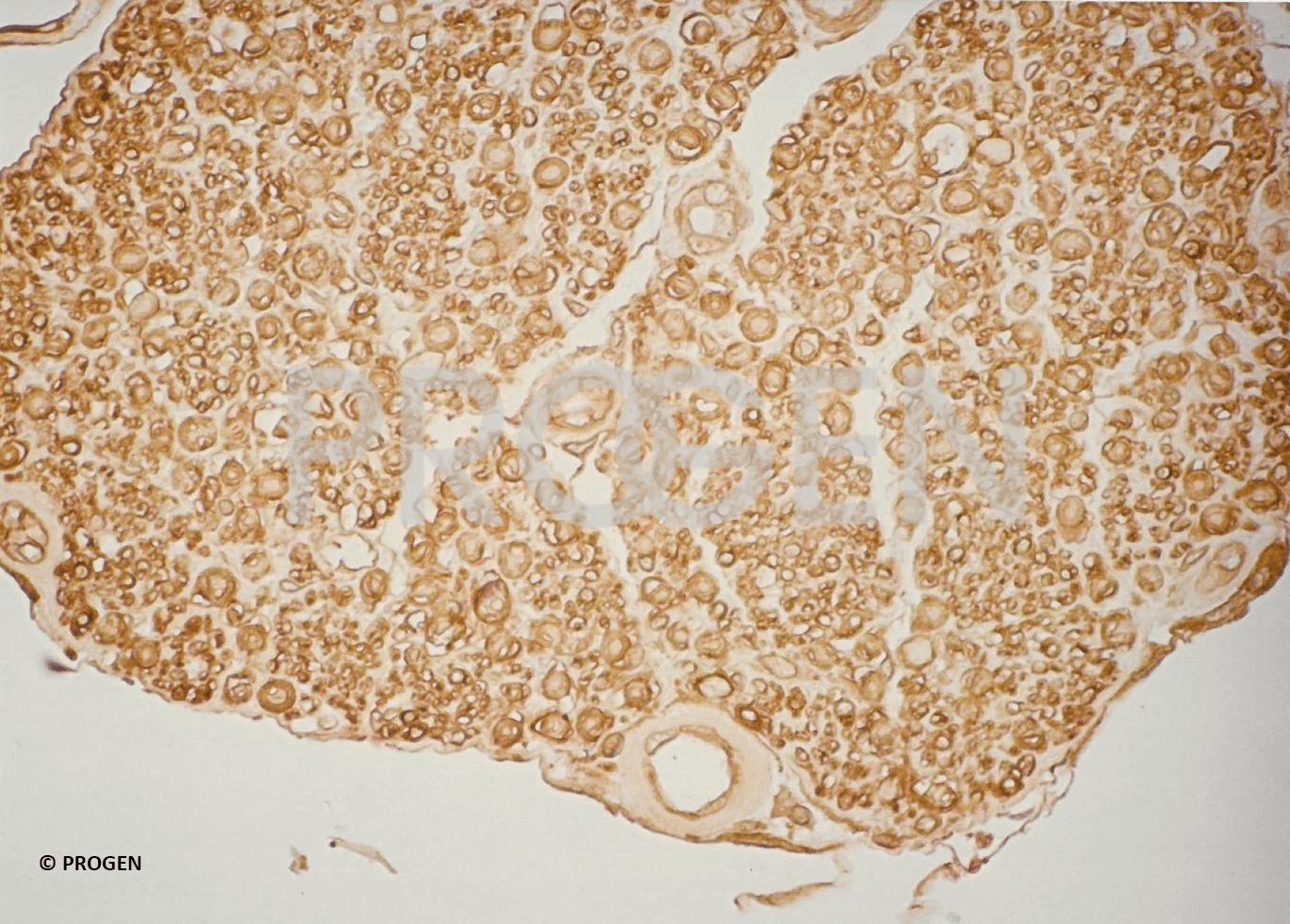 anti-Myelin mouse monoclonal, 2B5, ascites fluid