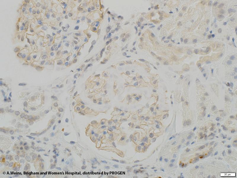 anti-Synaptopodin/SYNPO (internal) guinea pig polyclonal, serum