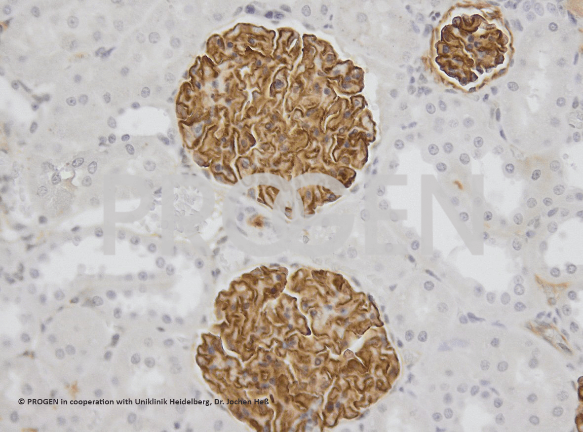 anti-Synaptopodin/SYNPO mouse monoclonal, G1D4, lyophilized, purified