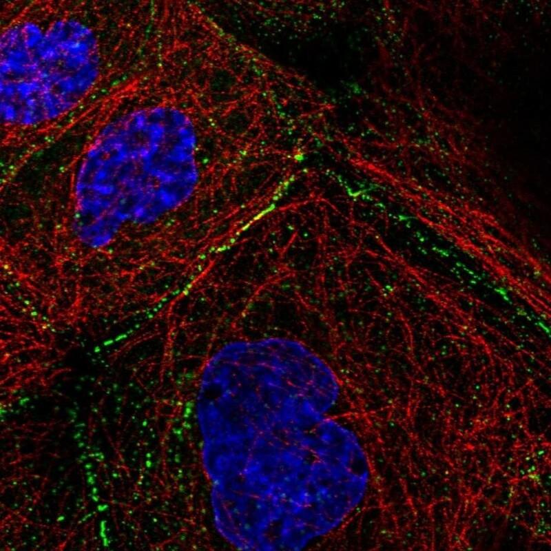 anti-Desmoplakin 1 mouse monoclonal, DP-2.17, lyophilized, purified