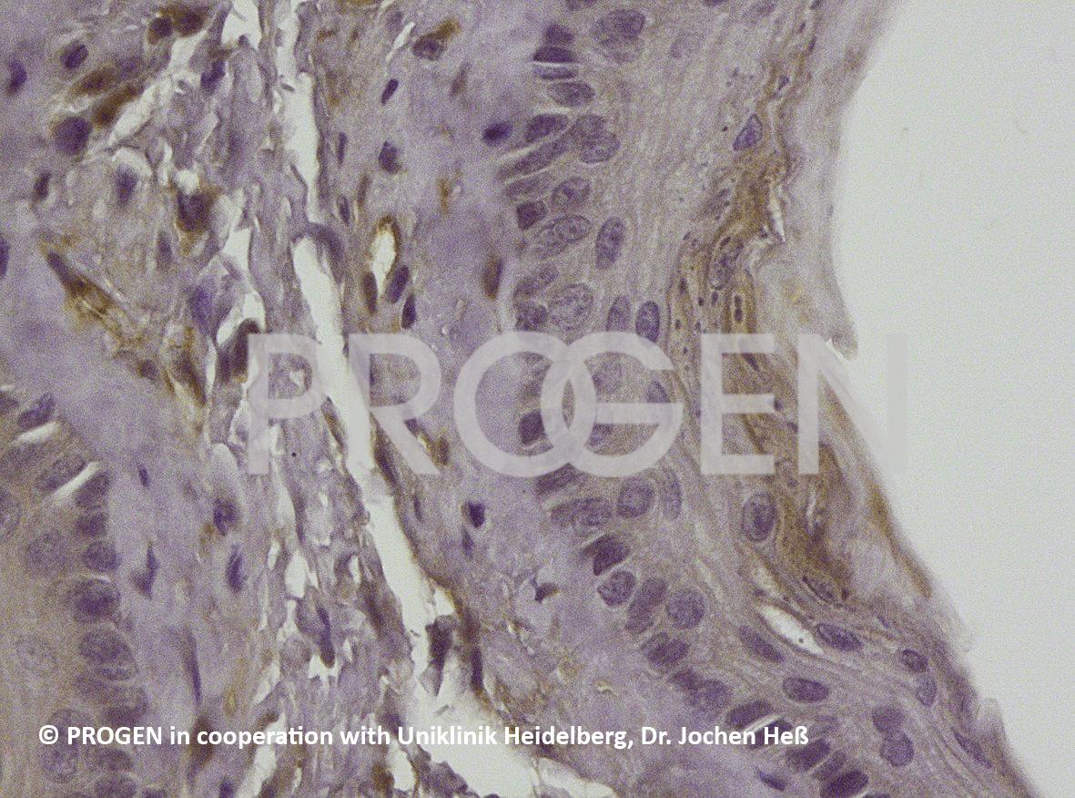 anti-Vimentin, VIM 3B4 + positive western blot control