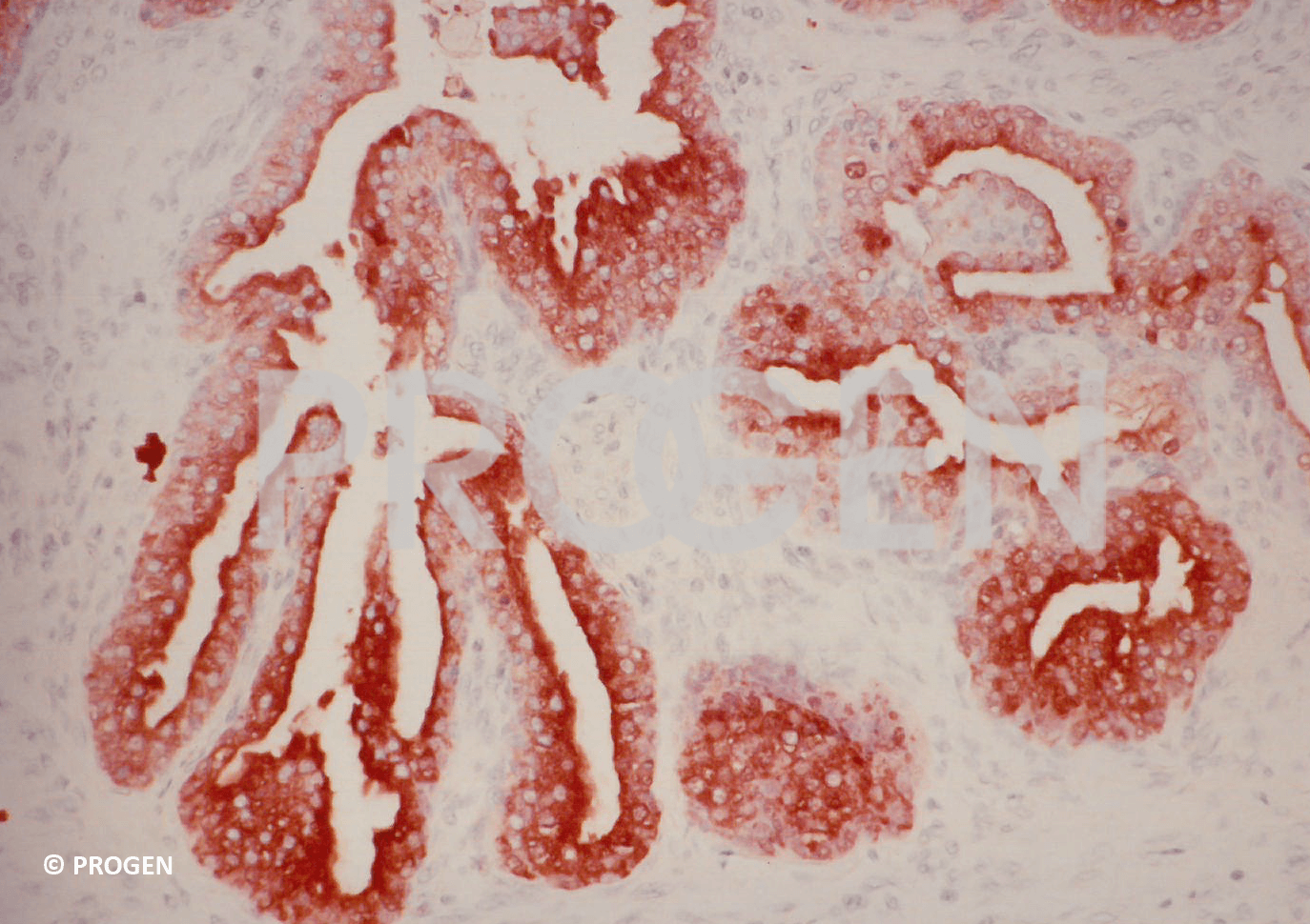 anti-Prostate-Specific Antigen mouse monoclonal, ER-PR8, ascites fluid