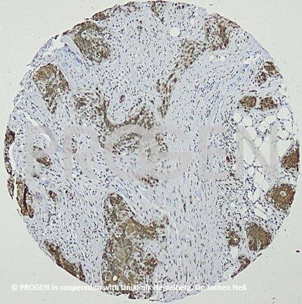 anti-Keratin K19 mouse monoclonal, Ks19.2 (Z105.6), lyophilized, purified