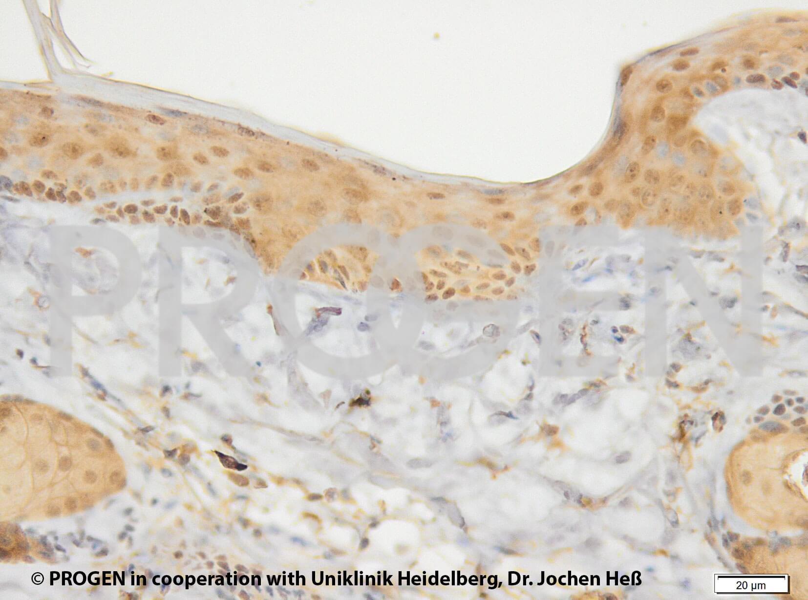anti-Keratin K17 mouse monoclonal, Ks17.E3, liquid, purified, small