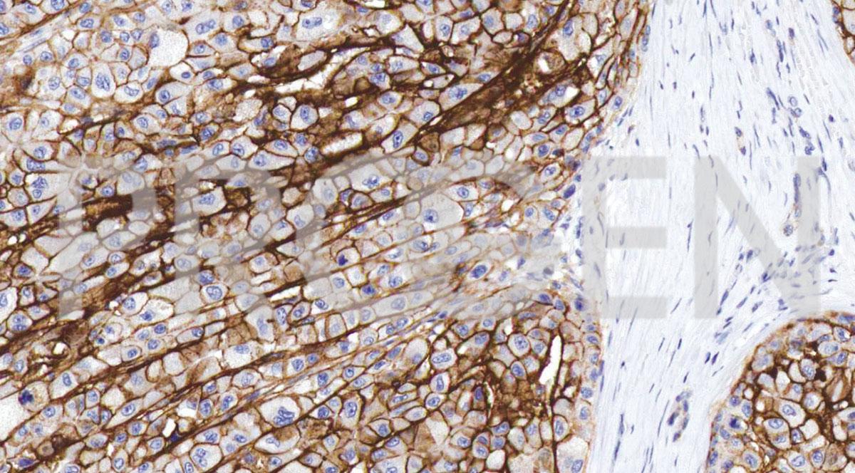 anti-CD138 mouse monoclonal, IHC138, purified