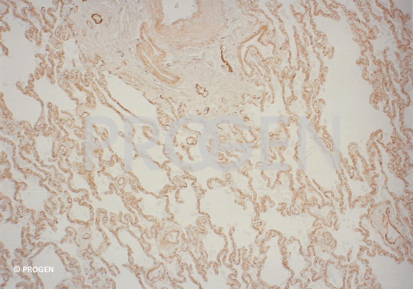 anti-Collagen Type IV rabbit polyclonal, serum