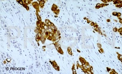 anti-Keratin K8/K18 mouse monoclonal, NCL-5D3, supernatant
